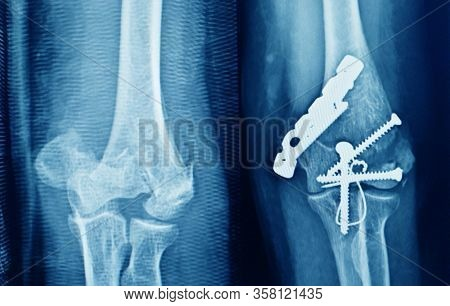 X-ray Elbow Bone Fracture(proximal Ulnar Or Olecranon Fracture ) And Post Operation Fix Screws From