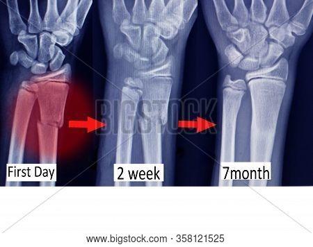 X-ray Wrist Show Fracture Distal Radius (forearm's Bone)