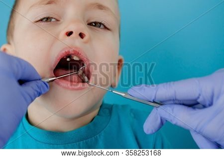 Close Up Of Dentists Hands With Assistant In Blue Gloves Are Treating Teeth To A Child, Patients Fac