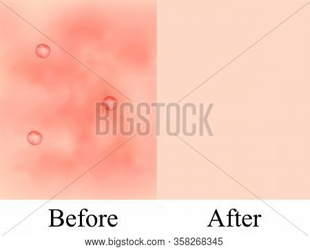 Texture, Inflamed Pimples And Acne. Before After Acne Cysts. Skin Background. Infographics. Vector I