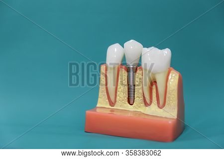 Dental Implant Model On A Green Background