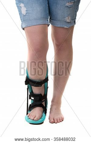 Cloe Up Of Woman Legs With Night Splint Foot Orthosis
