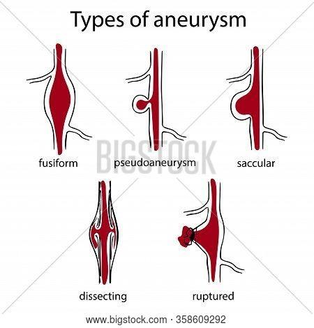 Types Of Aneurysm. Fusiform, Pseudoaneurysm, Saccular, Dissecting, Ruptured. Simple Medical Anatomy