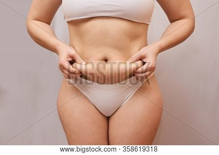 Fat Unhealthy Woman Body. Pinch Belly Side. Measurement Lady Procedure. Medicine Pinching. Anti Cell