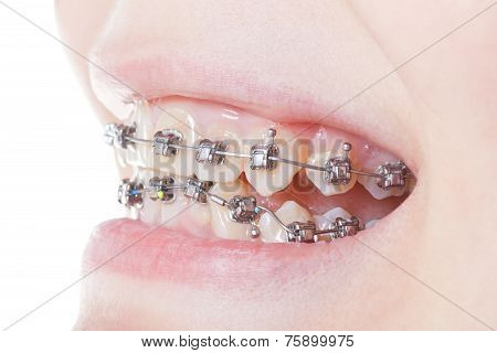 Side View Of Dental Braces On Teeth Close Up