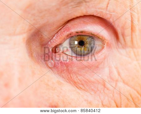 Elderly Woman Eye