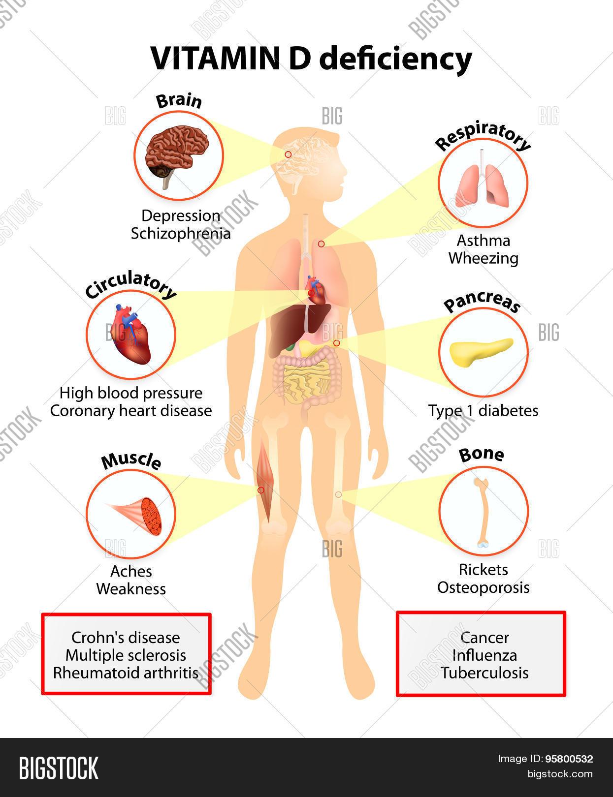 Vitamin D Deficiency Vector & Photo (Free Trial) | Bigstock
