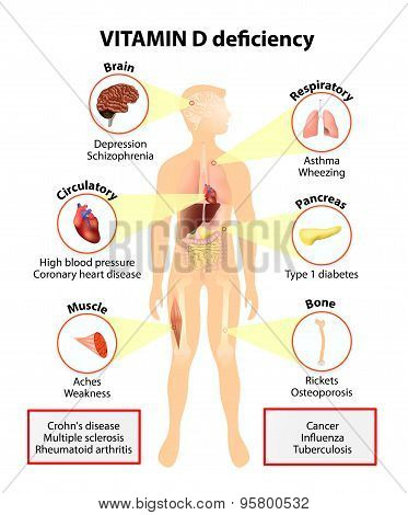 Vitamin D Deficiency. Symptoms And Diseases