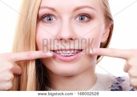 Orthodontist dentistry treatment concept. Happy smiling woman pointing at her dental braces on teeth
