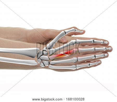 Hand Fractured Bone Male - Studio Shot With 3D Illustration Isolated On White