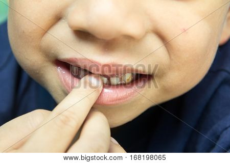 Asian boy smile with decayed teeth background