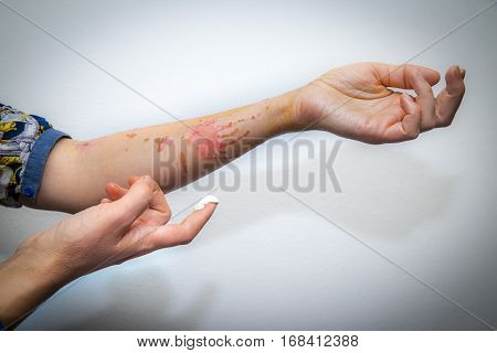 Treatment Of Burnt Skin With Cream