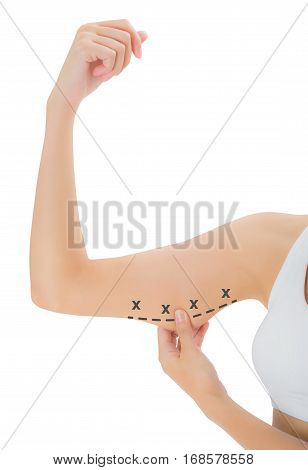 woman grabbing skin on her upper arm with the black color crosses marking Lose weight and liposuction cellulite removal concept Isolated on white background.