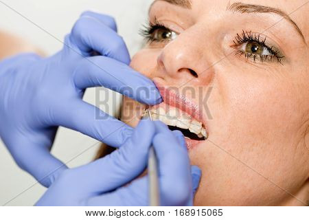 Orthodontist fixing invisible ceramic braces, color image