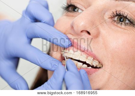Orthodontist adjucting invisible dental braces, color image