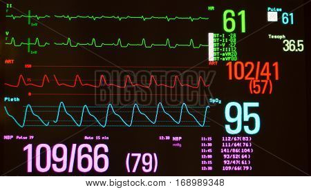 Monitor with black screen showing Intraventricular conduction delay on the EKG (green lines), arterial blood pressure (red line), oxygen saturation (blue line), noninvasive blood pressure, temperature and pulse.