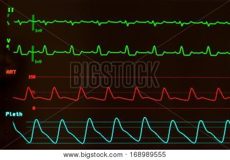 Close up of ECG or electrocardiogram showing Intraventricular Conduction Delay on the green lines,  arterial blood pressure on the red line and oxygen saturation or plethsmography on blue line against monitor with black screen.