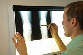 specialist watching image of knees and lower limbs at xray film viewer poster