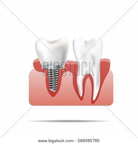 Healthy Teeth And Dental Implant. Realistic Illustration Of Tooth Medical Dentistry. Human Teeth Den