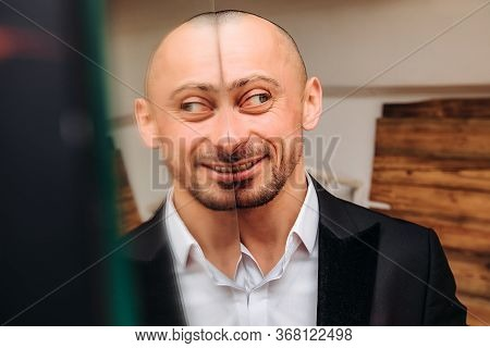 Crazy Bald Happy Man Grimace-stupid Face. Funny And Stupid Guy In A Suit.eyes Look In Different Dire