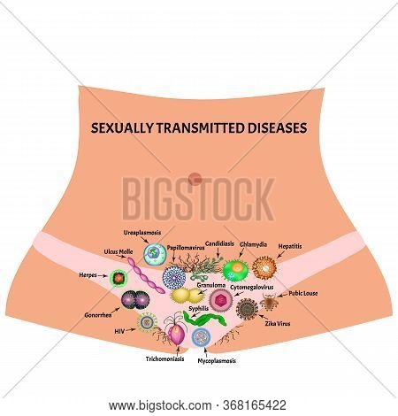 Viral And Bacterial Infections. Sexually Transmitted Diseases. Infographics. Illustration On Isolate