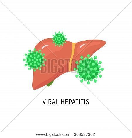 Viral Hepatitis Cartoon Liver Diagram. Hepatic Virus C Failure Hcv Vector Sign