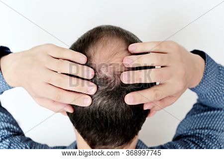 Baldness, Man In A Shirt Concerned About Hair Loss. Male Head With A Bald