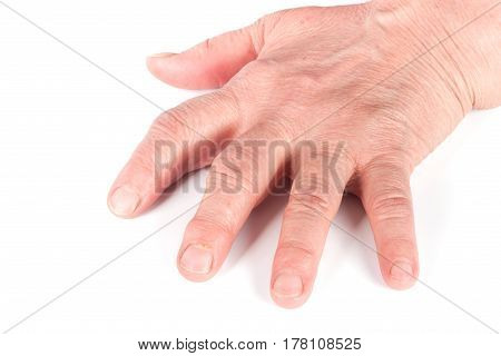 Rheumatoid polyarthritis of hands isolated on white background.