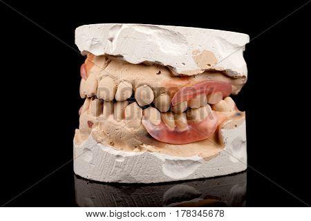 Dentures on plaster cast. Close-up on a black background