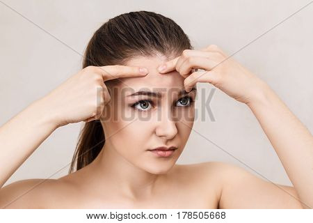 Young girl squeezes pimple on her forehead over beige background.