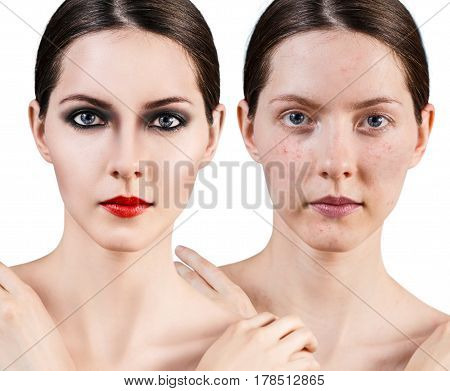Portrait of young woman with acne skin before and after bright make-up.
