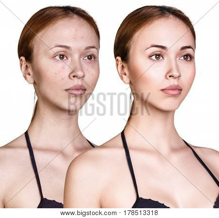 Woman with problem skin on her face before and after treatment and make-up over white background