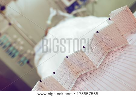 ECG chart on the background of the patient bed.