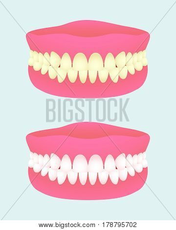 Denture in two health states. Dental implant with different teeth colors. Sick and healthy teeth jaw. Medical items. Vector illustration.