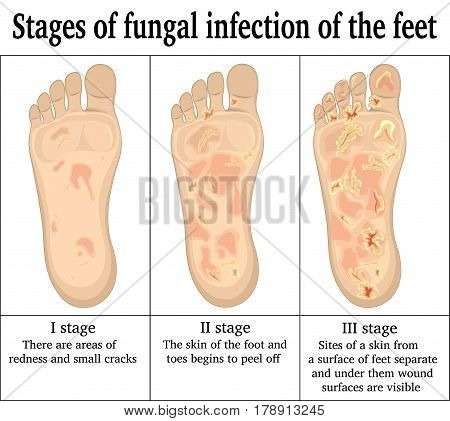 Three stages of fungal infection of the feet