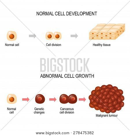 Cancer cells. illustration showing cancer disease development. Healthy tissue and Malignant tumour.  Vector diagram for your design, educational, biological, science and medical use poster