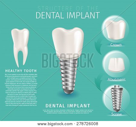 Realistic Image Structure Of The Dental Implant. 3d Banner Vector Illustration Midicine Orthodontic