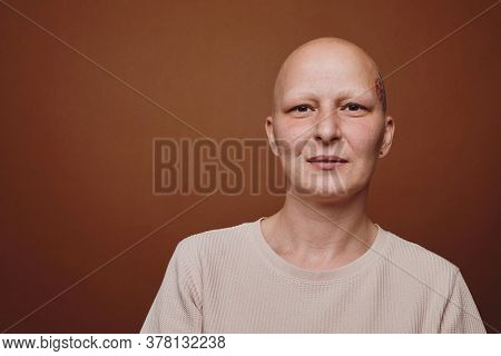 Minimal Head And Shoulders Portrait Of Bald Woman Smiling At Camera While Posing Against Warm Toned