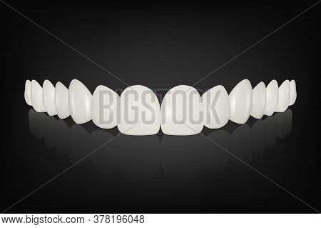 Vector 3d Realistic Render White Denture Set Closeup Isolated. Dentistry And Orthodontics Design. Hu