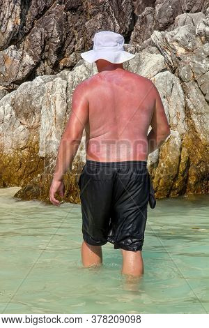 Burning Man Smeared With Sunscreen. A Man Sunburned In The Sun With Red Skin In A White Panama Hat A