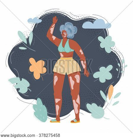 Cartoon Illustration Of Young Happy Woman With Vitiligo Skin, Pigmentation On Arms And Legs Wearing