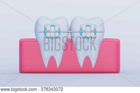 Two Teeth With Metal Braces, Molars In The Gum, Front View. Care, Orthodontics And Dentistry Symbols