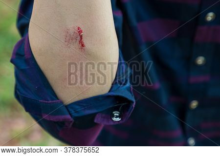 Injuries From Falling In The Garden.\na Man Showing A Lesion On His Arm. Arm Is Wound From A Knife.