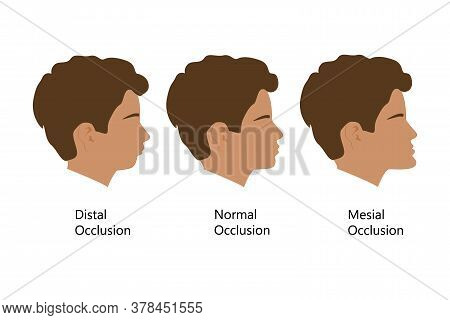 Guy With Distal, Normal, And Mesial Bite Profile, Vector Illustration. Overbite Or Underbite Before