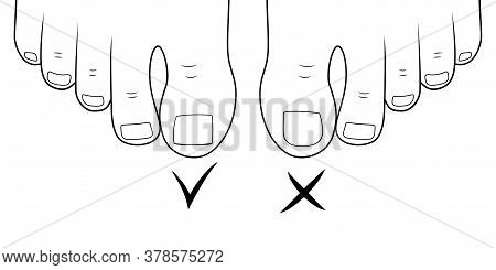 Right To Cut Toenails. Ingrown Toe Nail. Pedicure Foot Sole. Outline Vector Illustration.