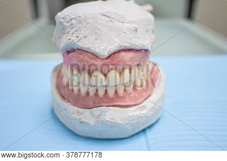 False Prostheses. Dental Hygienist Checkup Concept. Full Removable Plastic Denture Of The Jaws.