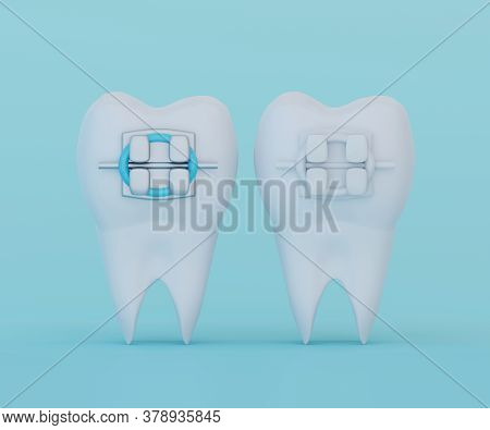 Tooth With Metal Braces And Tooth With Ceramic Braces On Blue Background. Comparison Of Braces And B