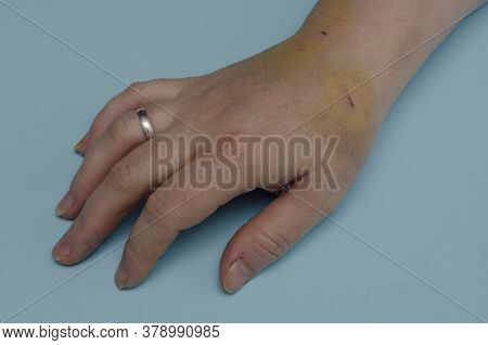 Hand Of Middle-aged Caucasian Woman With Bruises And Wounds. Woman Demonstrates Hematomas And Skin I