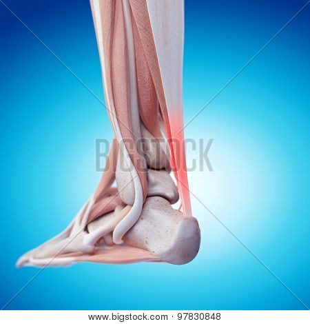 medically accurate illustration - painful achilles tendon
