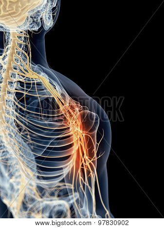 medically accurate illustration - painful shoulder nerves
